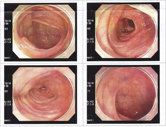 前日 検査 内 大腸 鏡 視