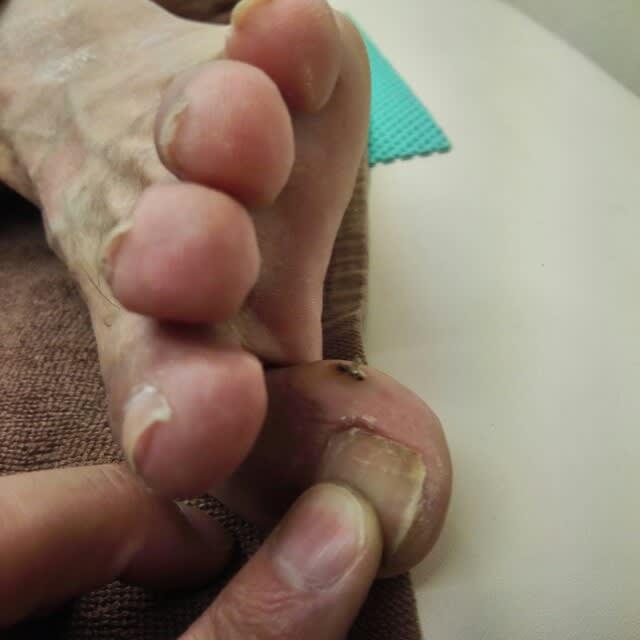 足の親指の内側にタコ