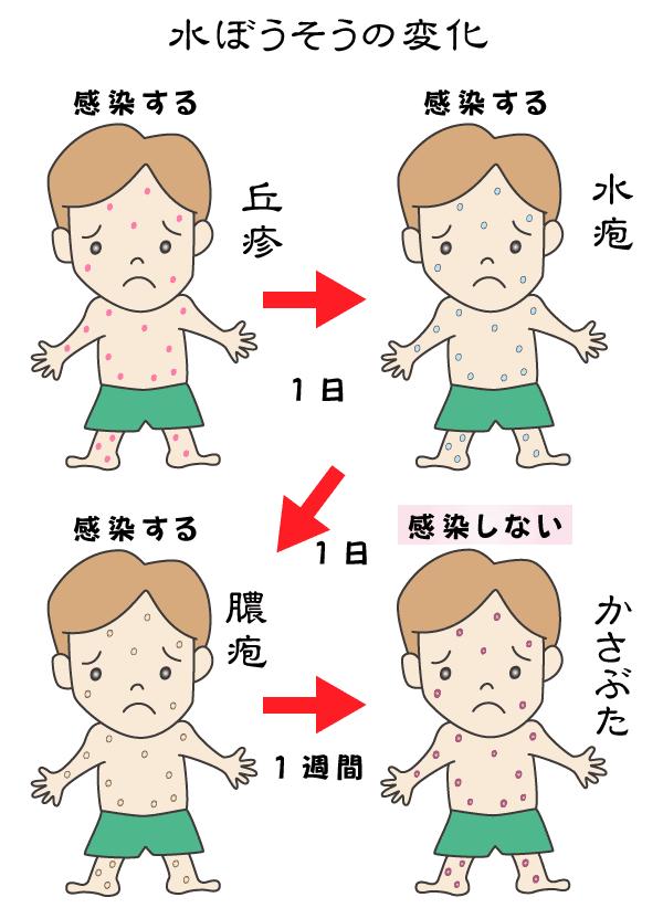 妊婦さんと水疱瘡 - 中野駅南にある日本初の女性専門鍼灸院 ...