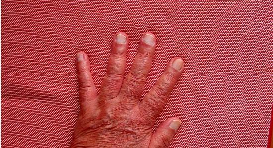 左手 小指 しびれ 脳 梗塞
