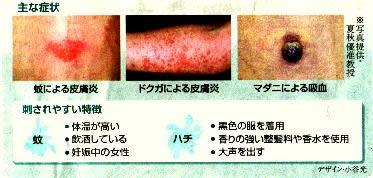 主な症状&刺されやすい特徴