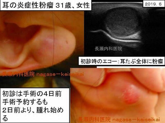 腫れる 耳たぶ