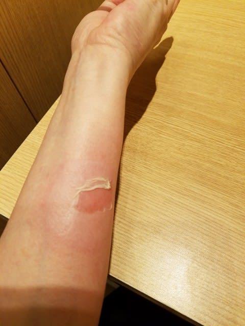 やけど 水ぶくれ 破れ た 火傷で水ぶくれが破れた後の正しい処置方法/湿潤療法が主流です