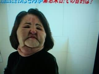 扇風機おばさん現在」死因となった病気の原因を仰 …
