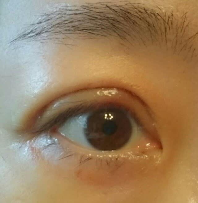 保険適用)眼瞼下垂手術経過レポート 術後6日目 , 超私事!葉月の