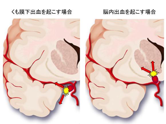 脳内出血だけを起こす動脈瘤 - ...