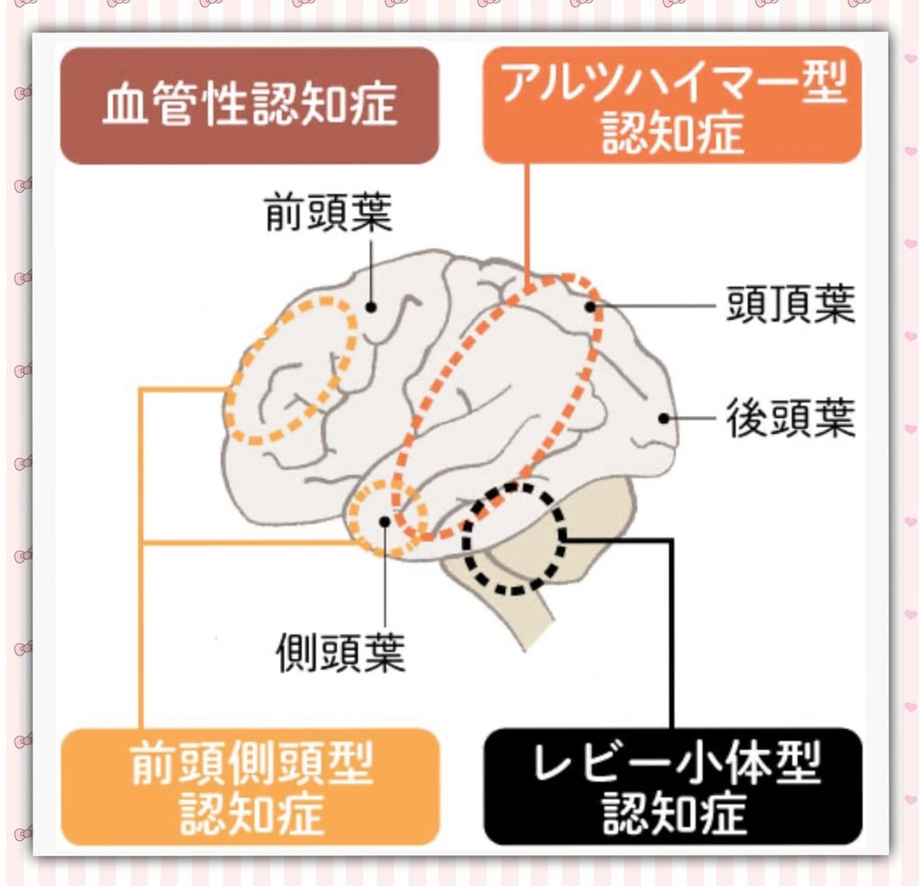 認知 症 型 アルツハイマー