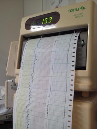 妊婦 検診 nst