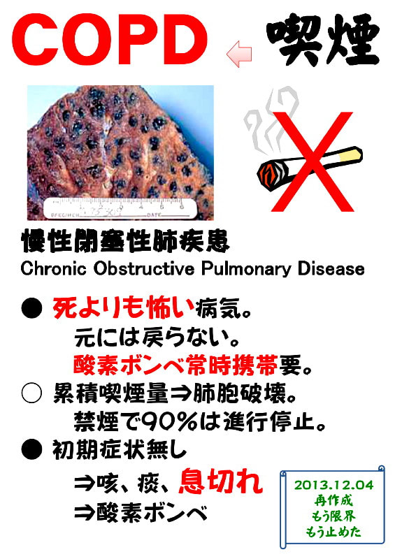 Copd_2