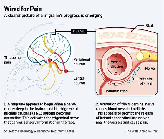 片頭痛治療の新たなターゲット -...