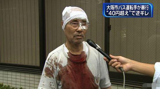 大阪市交通局職員また逮捕…今度はタクシー運転手を暴行 かなり酒を飲んでいた - アルコール・カフェイン業界と芸能人の広告戦略とアルコール・カフェイン中毒について