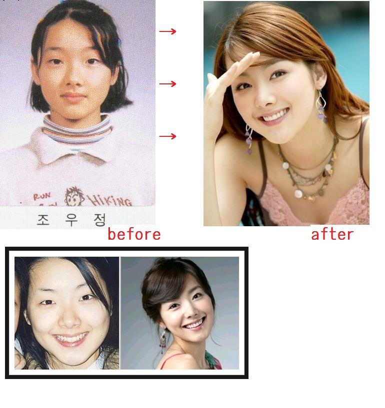 韓国の女優の美しさと整形 - 世界変動展望