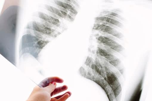 ヒビ 症状 肋骨 肋骨ヒビと骨折の痛みや症状の違い…応急処置・リハビリ方法と完治期間