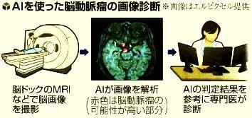 AIを使った脳動脈瘤の画像診断の流れ