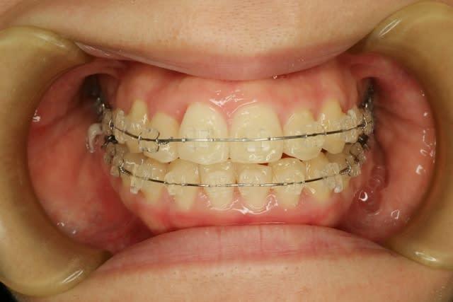 前歯 歯茎 腫れ