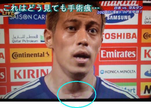 本田に公式にこの手術痕のことにふれるインタビュー見たことないんだけど、超禁止事項になっているのか。選手や関係者は知ってると思うんだけど、公式に出てこないんだ